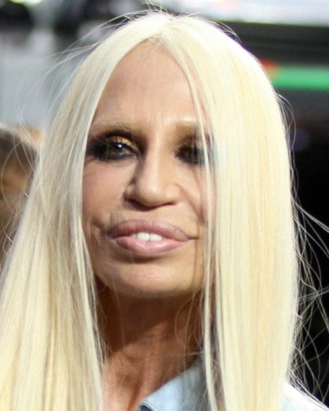 Она сделала невероятно количество операций: изменила форму носа, увеличила губы, сделала несколько подтяжек и пластику груди.