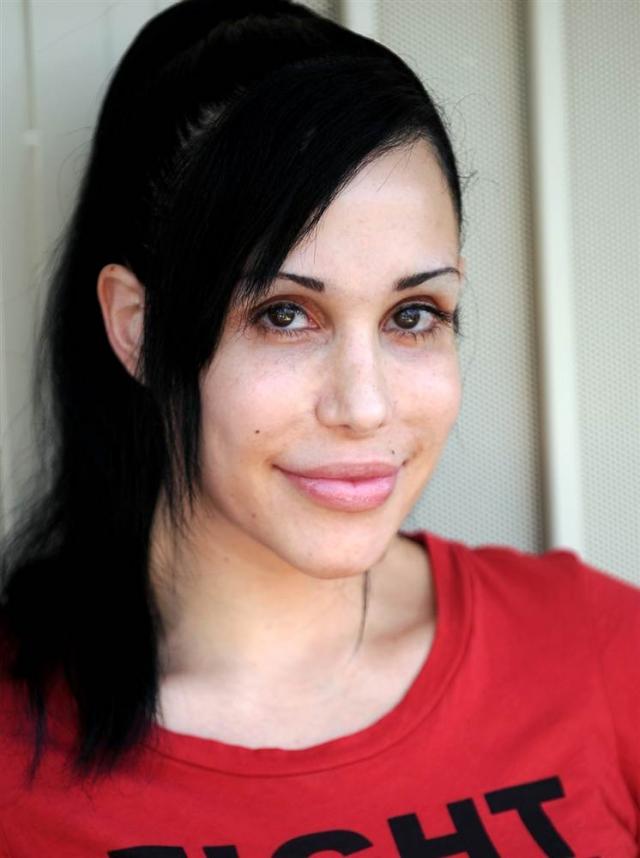 Для начала она перенесла несколько пластических операций. Но после этого девушка захотела стать не менее многодетной мамой. У матери-одиночки 14 детей, восемь из которых в 2009 году появились на свет в один день.