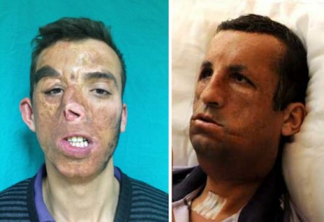 Угур Акар (Ugur Acar) из Турции получил серьезные ожоги лице во время пожара. Он получил полную трансплантацию лица в 2012 году.