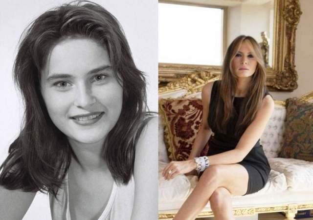 Мелания Трамп Чтобы быть более востребованной в мире моды, Мелания сделала пластику: изменила форму носа, увеличила обьем губ и размер груди.