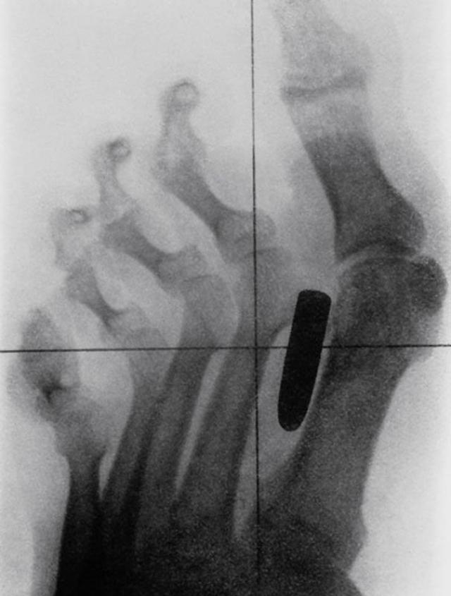 Старинный рентгеновский снимок ступни солдата англо-бурской войны (1899-1902) с огнестрельным ранением. Пуля застряла в плюсневой кости между большим и вторым пальцами.