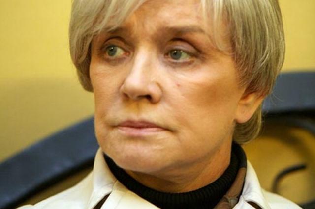 Свою первую операцию по подтяжке лица она провела в 1998 году.