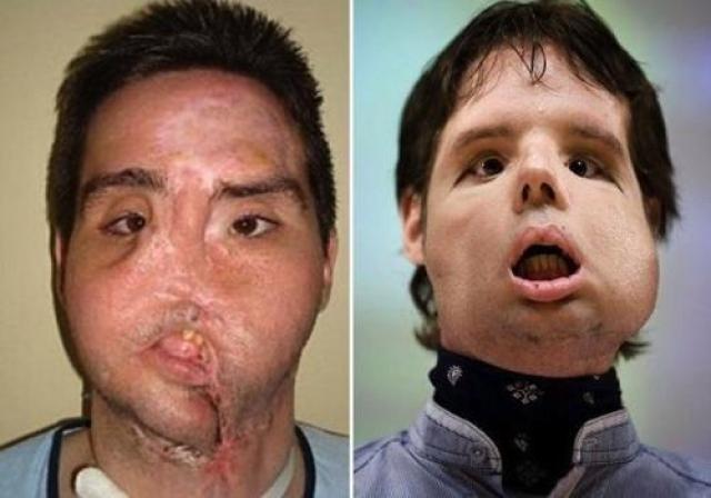 Этот человек, известный в интернете как Оскар , обычный испанский фермер. Случайно выстрелил себе в лицо. Получил полную трансплантацию лица в 2010 году.