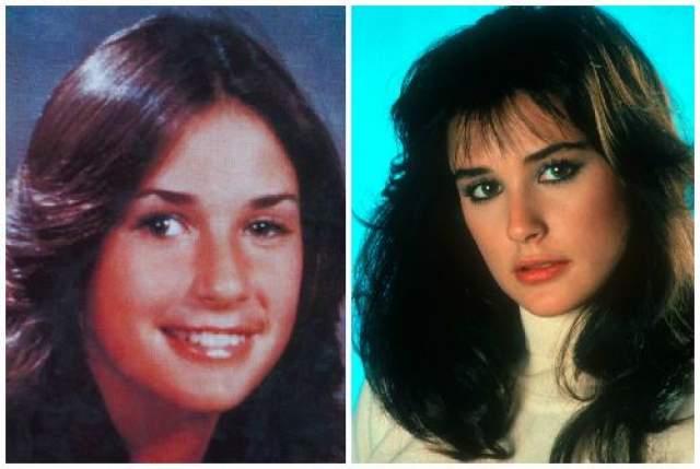 Деми Мур, 55 лет. В свои годы актриса выглядит лучше, чем 20 лет назад. Причем вначале она исправила лишь косоглазие.