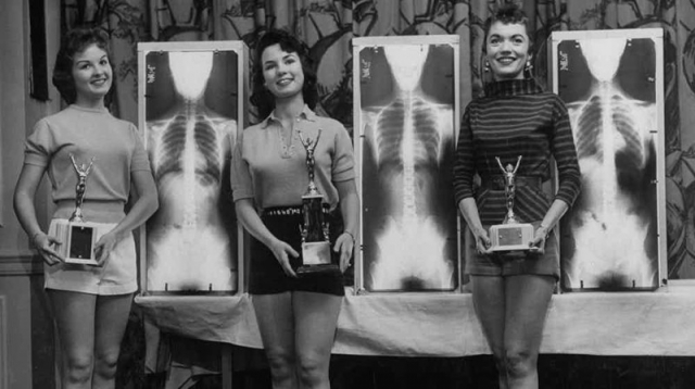"""""""Мисс лучшая осанка"""". Состоялся этот """"осмотр"""" в Чикаго в 1956 году. И чтобы основываться не только на внешнем виде участниц, жюри потребовало рентгеновские снимки девушек"""