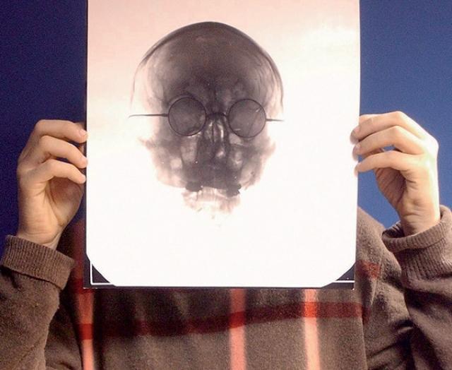 Рентгеновский снимок Джона Леннона ушел с молотка на аукционе в Лондоне в 2006 году за 250 000 фунтов. Кстати, на этом фото его держит в руках сам Леннон.