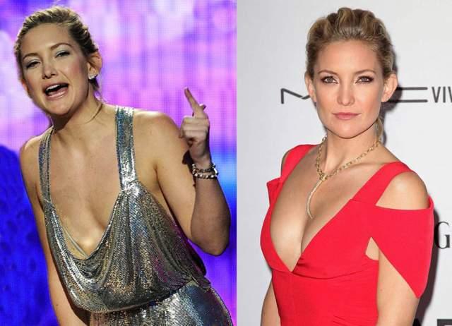 """""""Кейт никогда не стремилась стать Памелой Андерсон, но мысль об увеличении груди всего на один размер не давала ей покоя"""", - сказал знакомый звезды."""