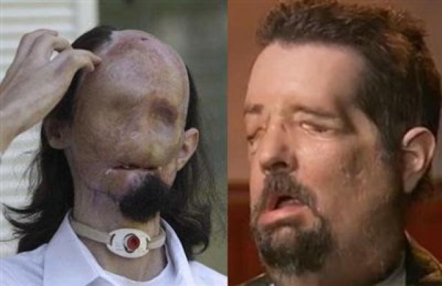 Даллас получил новый лоб, нос, губы. Донорские ткани прижились, и в его жизни наступил новый этап.