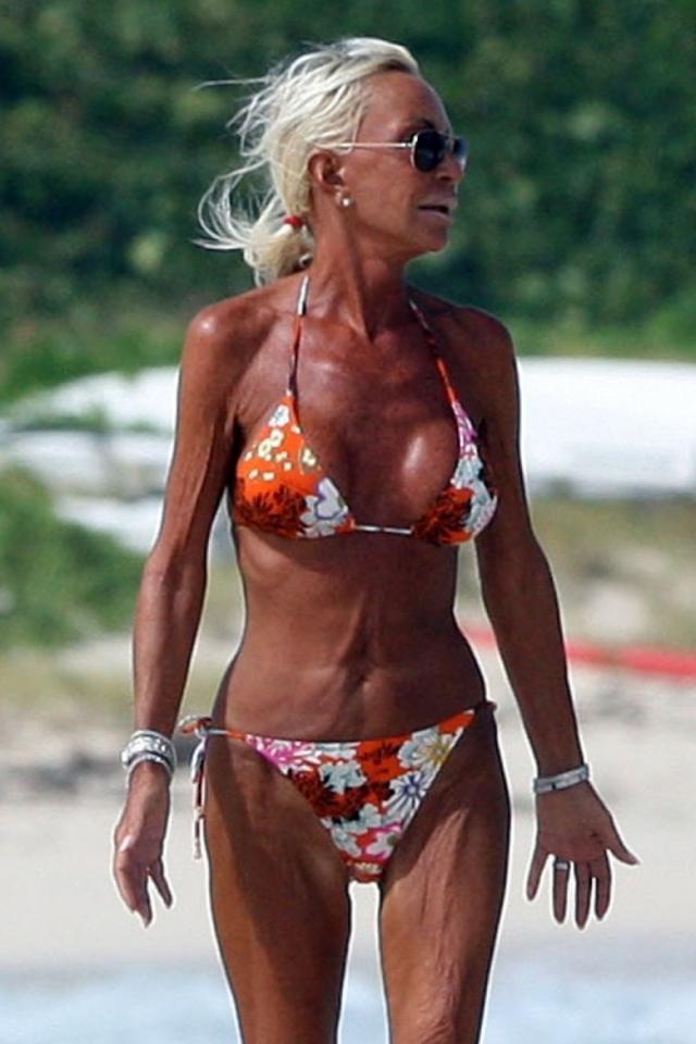 Донателла Версаче. 61-летний модельер радует папарацци пляжными фото с обвислой после откачки жира кожей уже давно.
