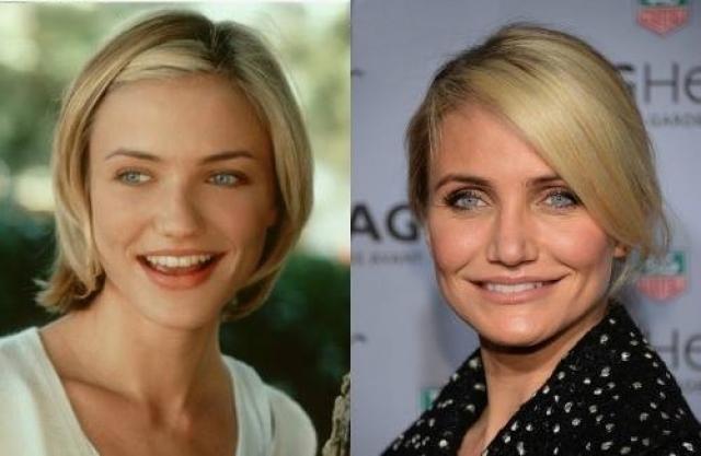 Камерон Диаз. Сама актриса отрицает какие-либо манипуляции с лицом и утверждает, что является приверженкой естественного старения, нов се же изменения на лицо.