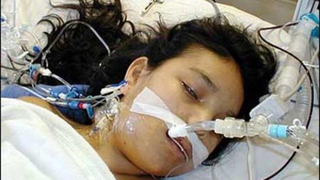 Не те органы. 17-летняя Джесика Сантильян умерла спустя 2 недели после пересадки сердца и трансплантации легких.