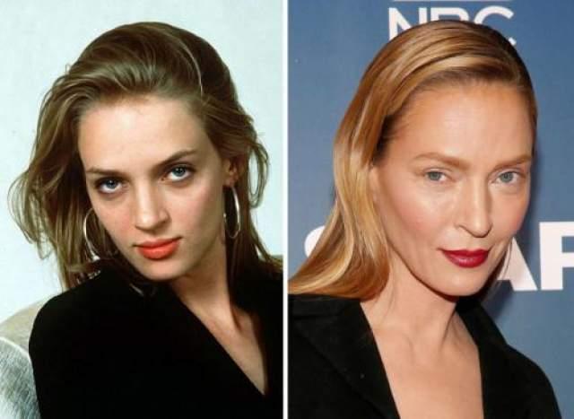Ума Турман У Умы Турман всегда была интересная внешность, красивая бледная кожа, симпатичные скулы, как будто слегка выгоревшие на солнце волосы. Но в 48 лет она вдруг стала выглядеть совсем не так, как еще каких-то лет пять назад. на одном из телевизионных шоу звезда отказалась признать, что она что-то сделала со своим лицом, сказав лишь, что ее внешний вид - результат процессов, которым не один год.