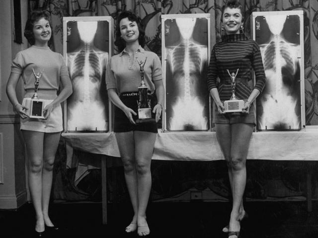 """Победительницы конкурса красоты """"Мисс правильная осанка"""", проведенного на национальном съезде хиропрактиков. Чикаго, США, 1956 год."""