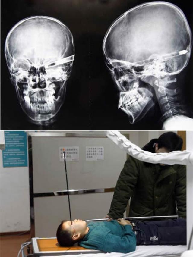 Стрела прошла через глаз 11-летнего жителя Китая Лю Чеонга и, как можно увидеть на фото, была остановлена только задней стенкой черепа. Если бы стрела летела с чуть большей силой, то она наверняка вышла бы из затылка, сказал хирург проводивший операцию. Мальчика удалось спасти только благодаря тому, что опасный объект каким-то чудом не зацепил его мозг.