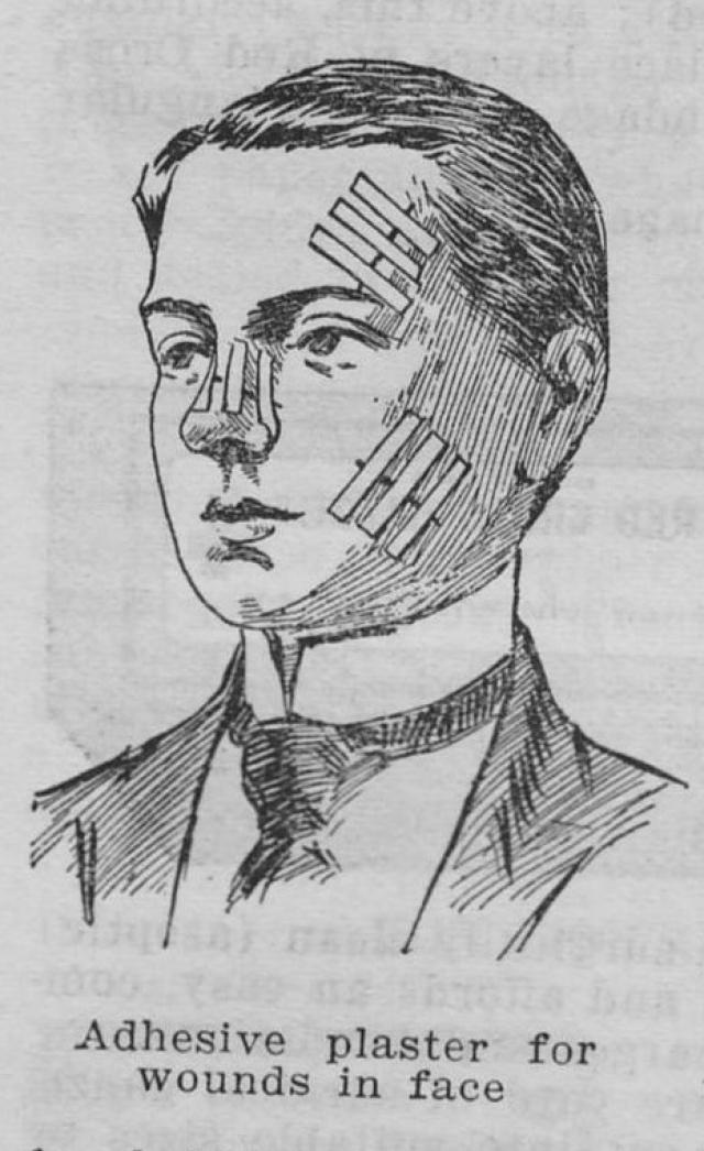 Пластырь. Был придуман в 1920 году исследователем компании Johnson & Johnson благодаря тому, что его жена порезалась во время приготовления пищи.
