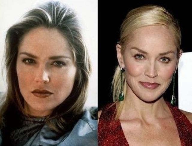 Шэрон Стоун. Актриса в начале своей карьеры также сделала ринопластику: исправила перегородку носа и добавила ему остроты.