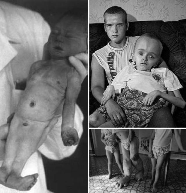 """По данным """"Гринпис"""", среди тех, кто занимался ликвидациями последствий аварии, от критической дозы облучения погибло порядка 10 тысяч человек, в Европе было зафиксировано около 10 тысяч новорожденных с уродствами и более 10 тысяч человек заболели раком щитовидной железы."""