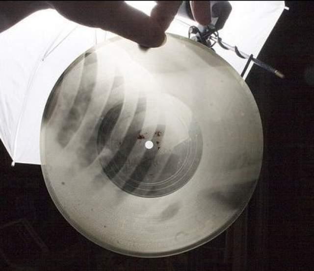 """Только в СССР существовали пиратские копии с виниловых пластинок - """"пластинки на костях"""" или """"пластинки на ребрах"""". Такое название они получили, поскольку изготавливались на старых рентгеновских снимках."""
