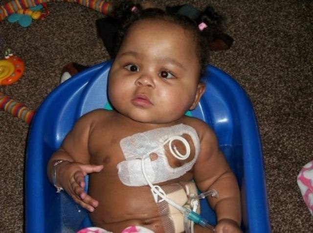 По медицинским показаниям маленькой Алисии Коулман было введено два катетера - один вел в желудок, другой - в грудь и сердце. Медсестра по неосторожности ввела лекарство предназначенное для желудка в грудную трубку. Сердце под действием препарата остановилось.