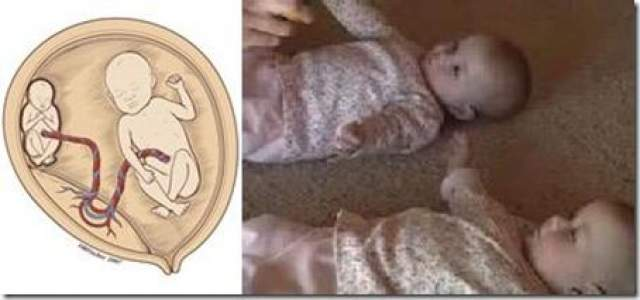 У близнецов было редкое расстройство, называемое синдромом фето-фетальной трансфузии, при котором дети соединены кровеносными сосудами и один близнец буквально забирает жизнь у другого. Если оставить двоих близнецов, то у обоих риск смерти составляет 90 процентов.