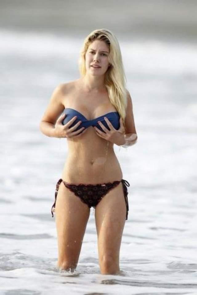 """Через некоторое время Хайди стала опасаться, что ее грудь однажды окажется на животе... По ее мнению, импланты начали """"соскальзывать"""" все ниже. Из-за слишком большого и тяжелого бюста у девушки начались серьезные проблемы со здоровьем. Боли в спине и онемение рук заставили Монтаг снова лечь под нож и уменьшить грудь, заменив прежние импланты размера F на размер C&"""