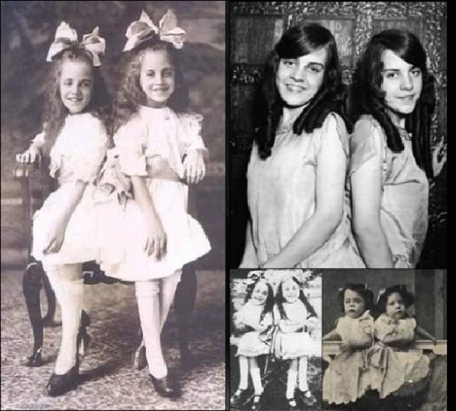 Дейзи и Виолетта Хилтон , родились 5 февраля 1908 года - умерли 4 января 1969 года в Великобритании. Они гастролировали в 1930-е годы по всей территории США как участницы водевилей и представлений бродячих цирков.
