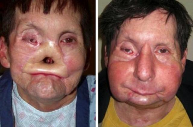 Джеймс Маки(James Maki) , штат Массачусетс, получил ужасные ранения после падения лицом вниз на электрифицированные железнодорожные пути местного метро. Джеймс Маки получил почти полную пересадку лица в 2009 году.