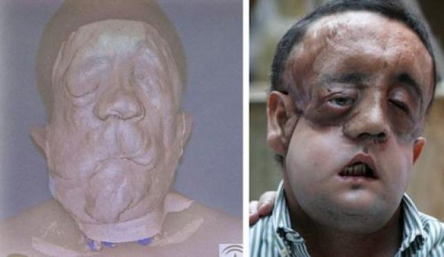 Этот человек, известный как Рафаэль. Испанский фермер, страдает нейрофиброматозом (как Паскаль Колер). Он получил частичную пересадку лица в 2010 году.