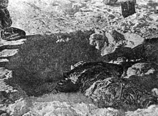 Еще в 330 метрах выше по склону под слоем плотного снега в 10 см нашли тело Зины Колмогоровой. Она была тепло одета, но не обута. Перед смертью у нее было кровотечение из носа. На кистях рук и ладонях множество ссадин и ран, крупное, опоясывающее правый бок, переходящее на спину осаднение кожи, а также отек мозговых оболочек.