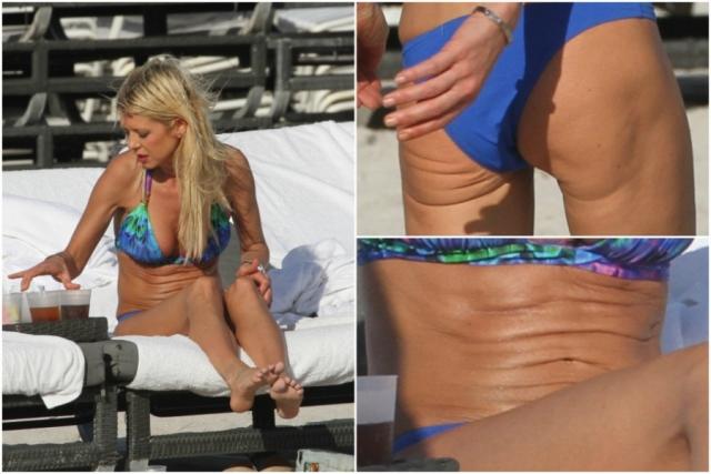 Тара Рид. Актрису можно назвать чемпионкой по количеству неудачных пляжных фото, снятых папарацци.