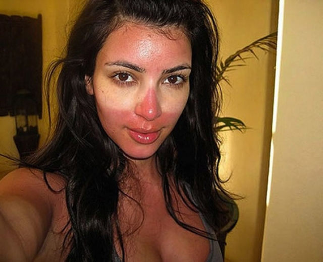 """Ким Кардашьян. А вот королева реалити-шоу, видимо, просто """"селфи-зависима"""", т.к. готова показать все, в том числе и обгоревшее лицо."""