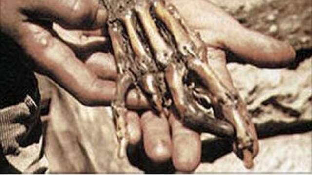 В другом непальском монастыре, Пангбоче, бережно и со знанием дела хранили руку, якобы точно принадлежавшую йети. Антрополог профессор У.С.Осман Хилл и группа ученых Калифорнийского университета города Лос-Анжджелес исследовали образцы кожи и кости с этой руки. Результаты показали, что образцы принадлежат неизвестному виду приматов.