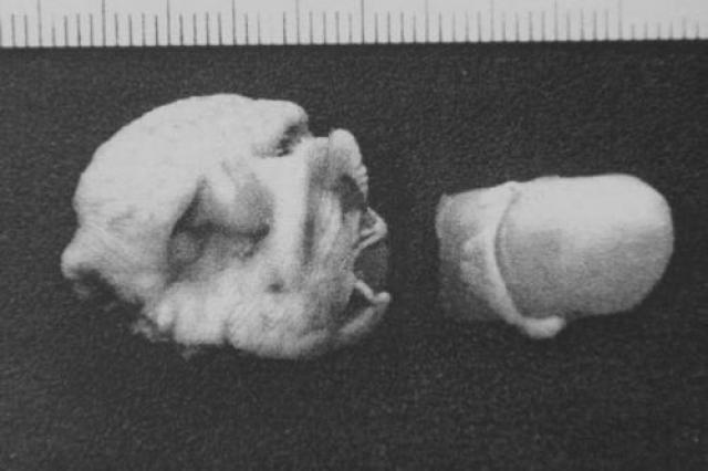 """В 2005 году Анна Айяла нашла в своей тарелке с чили…человеческий палец! Ресторан """"Wendy's"""" предложил вознаграждение в сумме $50 000 тому, кто расскажет, как палец оказался в еде."""
