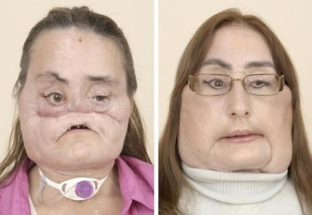 Конни Калп (Connie Culp) , женщина из Огайо, была на грани смерти после того, как ее муж выстрелил ей в лицо. Ей была сделана полная пересадка лица в 2008 году.