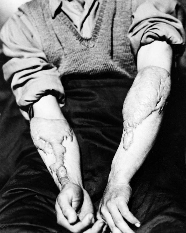 Акира Ямагучи демонстрирует шрамы, оставшиеся после ожогов от взрыва.