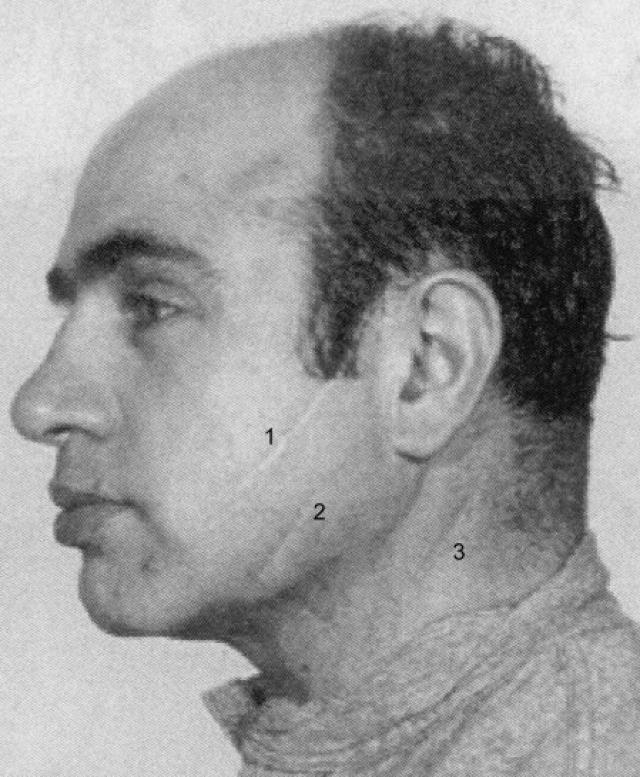 Ссора произошла из-за сестры Галлучио, в адрес которой Капоне отпустил дерзкое замечание. Галлучио полоснул юного Альфонсо ножом по лицу.