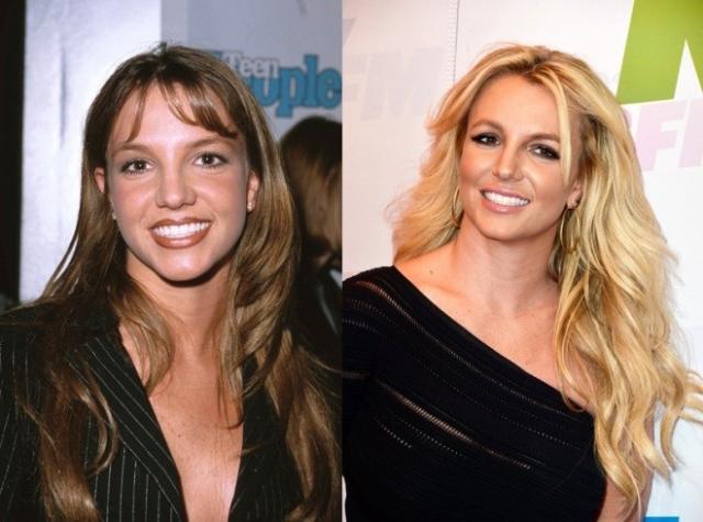 Бритни Спирс. Носик поп-принцессы также стал заметно изящнее.