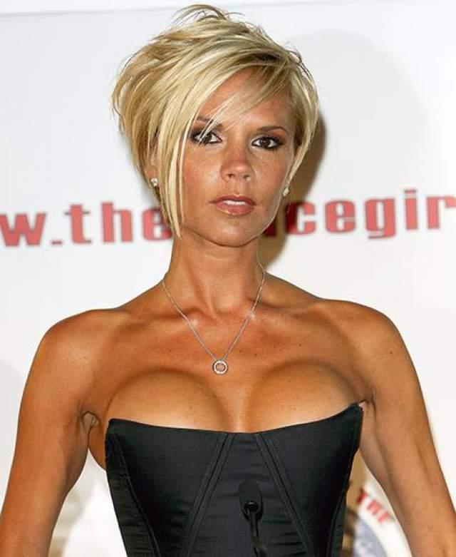 Виктория Бекхэм Виктория Бэкхем впервые увеличивала грудь после свадьбы с Дэвидом Бэкхемов. Через два года Вики показалось, что ее грудь недостаточно большая, и она снова сделала пластическую операцию, став обладательницей четвертого размера.