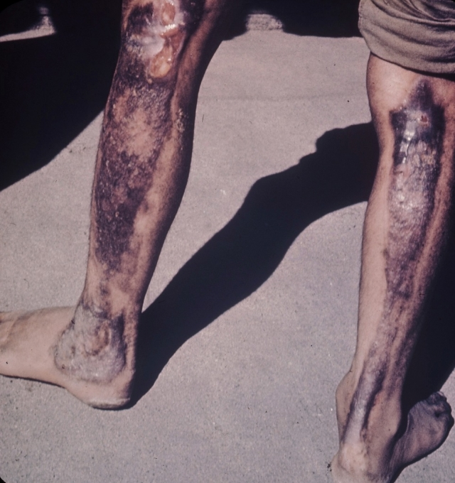 Большинство пострадавших, даже получивших медпомощь, постепенно умирали от разрушения клеток организма.