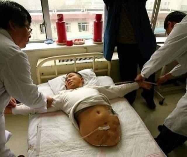 Мужчина выжил после того, как ему отрезало половину тела В 1995 году китайца Пенг Шулина разрезало наполовину, когда он попал под грузовик. Рост оставшейся половины тела составил 66 см.