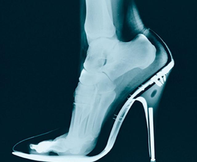 Главная проблема каблуков – от них сильно страдают суставы, постоянные отеки, больные сосуды, связки и мышцы, и это еще не весь букет болезней.Ортопеды советуют носить каблуки всего раз или два в месяц и то, только по 3-4 часа.Однако многие женщины не представляют своей жизни без шпильки и готовы всю неделю бегать на них — по двенадцать часов на день, превозмогая неудобство. Остается главное преимущество каблуков, ради которого женщина готовы терпеть даже боль – на шпильке ножка выглядит очень красиво. Да что там говорить, даже рентген такой ножки выглядит неплохо.