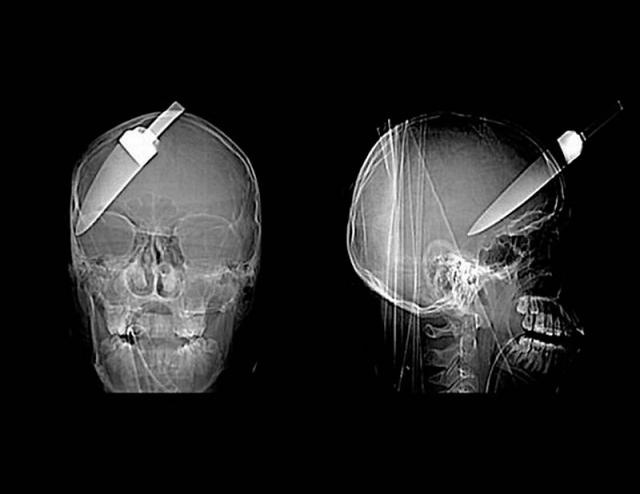 12-сантиметровый нож в черепе подростка.