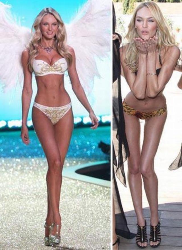 """Кэндис Свейнпоул. Одна из весенних фотосессий """"Victoria's Secret"""" шокировала поклонников и журналистов видом одной из моделей бренда."""