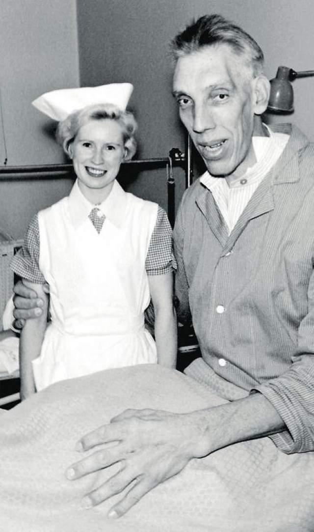 После 1981 года медики не смогли продолжать свою слежку за гигантом – он умер от сердечной недостаточности, в возрасте 59 лет. Женат не был.