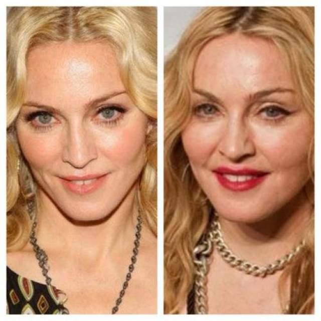 Мадонна Мадонна никогда не была исключительной красоткой, но что-то в ей было, необычные черты, фарфоровая нежная кожа. Певица снова и снова переделывала свой образ и музыку. Вместе с этими изменениями менялось и ее лицо. В почти 63 года у Мадонны нет ни одной морщины на лице, и это подозрительно. К тому же процесс ее старения нельзя назвать естественным, поскольку у нее есть все те же признаки ботокса, который пошел не так: маленькие глазки, постоянное выражение удивления на лице и так сильно натянута кожа, что вряд ли можно ее ухватить за щеку.