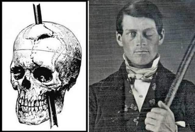 В 1848 году Гейдж работал строителем на железной дороге, когда взрыв привел к тому, что металлический прут длиной больше 1 метра прошел сквозь его череп. Врачам удалось вытащить прут, но у мужчины возник паралич левой стороны лица и произошли определенные психические изменения.