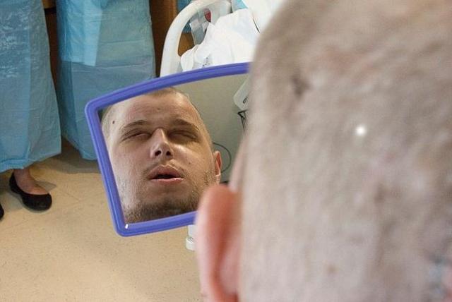 Это первый случай в истории медицины, когда человеку пересаживают столь большое количество лицевой ткани, хотя частичные пересадки проводились уже много раз. Теперь пациент может моргать и спать с закрытыми глазами!