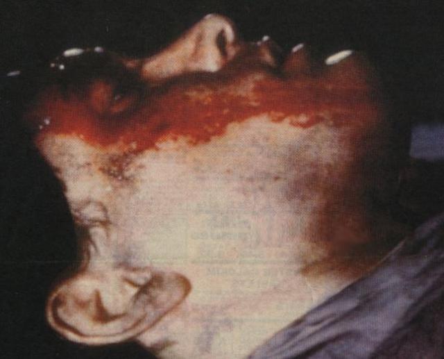 Спустя 12 часов он скончался в больнице в Вилмингтоне, Северная Каролина. Врачи констатировали смерть Брэндона Ли 31 марта 1993 года, в 13 часов 3 минуты, от непрекращающегося кровоизлияния.