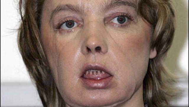"""Когда Изабель впервые подошла к зеркалу уже после операции, она почти не смогла увидеть себя из-за повязок, но сквозь бинты отчетливо просматривались нос, рот и подбородок, а это уже означало победу. """"По глазам медсестер я поняла, что операция прошла успешно"""", - вспоминает она."""