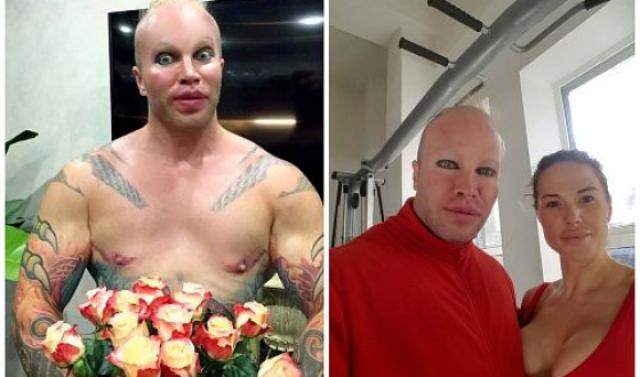 У него импланты были в ягодицах, грудных мышцах, он накачал губы, сделал много численные татуировки (аж на 5 млн рублей) и даже сделал необычную стрижку, дополненную кричащим макияжем. Также он изменил форму лица, нарастил клыки и сделал пластику век и скул.